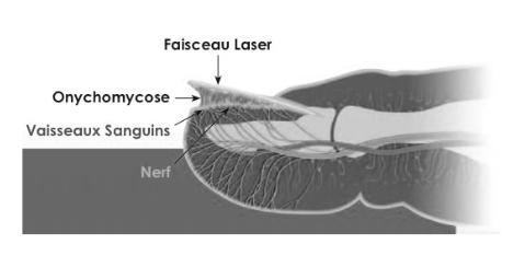 mycose ongle