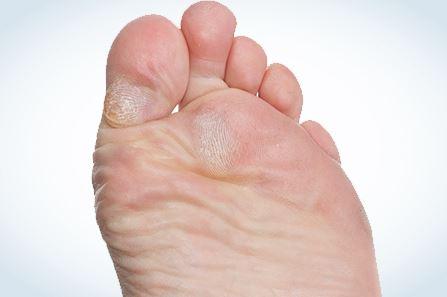 soins des pieds podiatre